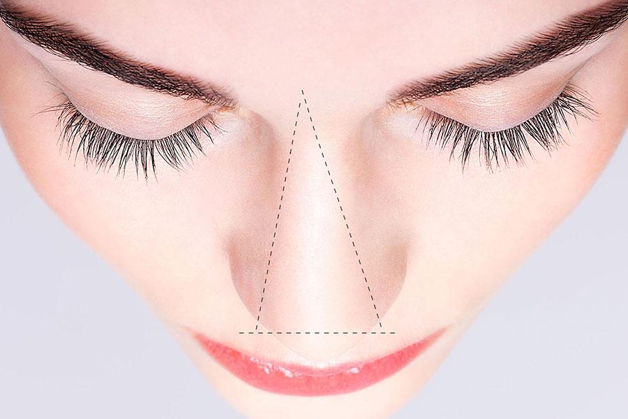 Korekta nosa kwasem hialuronowym – zabieg wart zachodu?